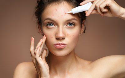 Problemas de pele: 3 razões porque os tratamentos convencionais podem não estar a resultar contigo